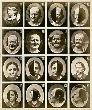 G.-B. Duchanne de Boulogne, Synoptic plate 4 f...