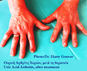 English: Hands after uric acid arthritis treat...