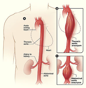 Diagram of aortic aneurysm Figure A shows a no...