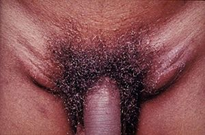 Lymphogranuloma venereum: is caused by the inv...