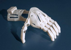 3-D Printed Prosthetic Hand - blue (5229) (18492491235)
