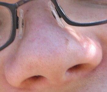 Child nose