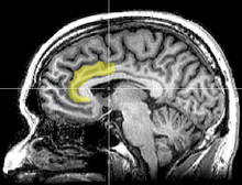 Sagittal MRI slice with highlighting indicating location of the anterior cingulate cortex.