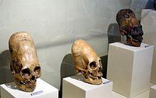 https://i2.wp.com/upload.wikimedia.org/wikipedia/commons/thumb/1/11/ParacasSkullsIcaMuseum.jpg/220px-ParacasSkullsIcaMuseum.jpg