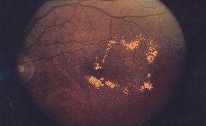 Diabetic macular edema.