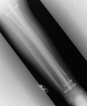 X-ray of fractured tibia and fibula, front vie...