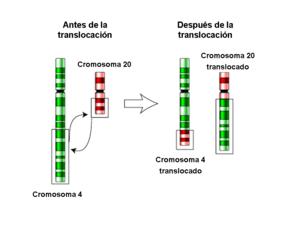 Translocación recíproca entre los cromosomas 4...