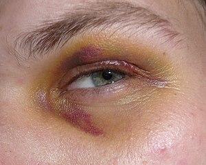 Black eye, 3rd day