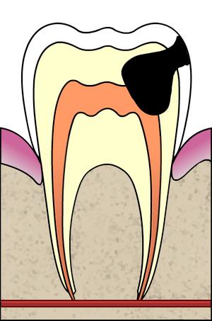 Cavities evolution 4 of 5 ArtLibre jnl