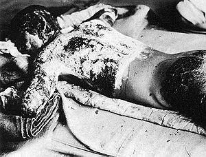 A victim with massive burns.