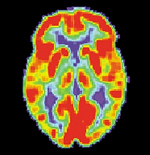PET scan of a normal human brain
