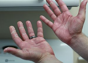 English: My hands after about 10 days of capec...