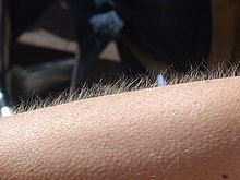 Photo of an arm with goosebumps