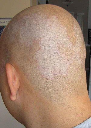 English: Picture of Seborrhoeic Dermatitis.
