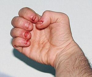 Dermatophagia - extreme nail biting / biting o...
