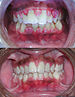 English: Really bad gingivitis, before and aft...