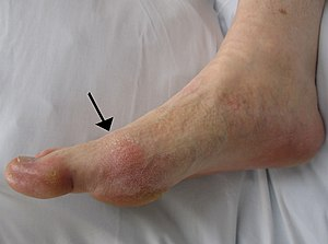 English: Gout presenting in the metatarsal-pha...