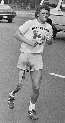 "A young man with short, curly hair and an artificial right leg grimaces as he runs down a street.  He is wearing shorts and a T-shirt that reads ""Marathon of Hope"""