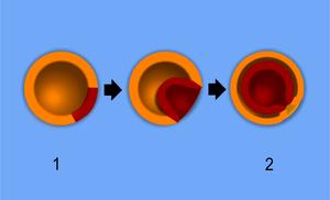 English: A scheme of embryo gastrulation.