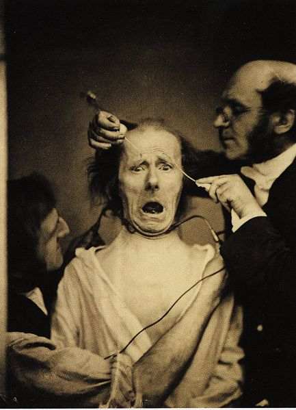 https://i2.wp.com/upload.wikimedia.org/wikipedia/commons/thumb/3/32/Guillaume_Duchenne_de_Boulogne_performing_facial_electrostimulus_experiments.jpg/433px-Guillaume_Duchenne_de_Boulogne_performing_facial_electrostimulus_experiments.jpg