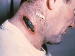Cutaneous anthrax lesion on the neck. PHIL 1934 lores