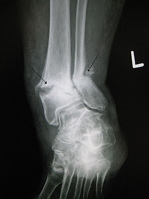 A old fracture with nonunion of the fracture f...