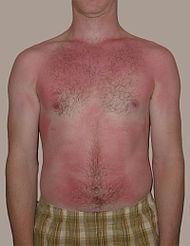 Sunburn.jpg