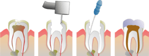 Root Canal Illustration Molar