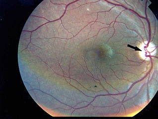 https://i2.wp.com/upload.wikimedia.org/wikipedia/commons/thumb/3/3e/Photographic_image_of_the_patient_right_eye_showing_optic_atrophy_without_diabetic_retinopathy_Wolfram_syndrome.jpg/318px-Photographic_image_of_the_patient_right_eye_showing_optic_atrophy_without_diabetic_retinopathy_Wolfram_syndrome.jpg