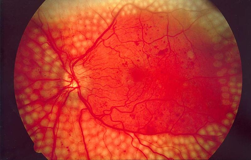 File:Fundus photo showing scatter laser surgery for diabetic retinopathy EDA09.JPG