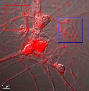 Neurons from the nucleus Accumbens stained (re...