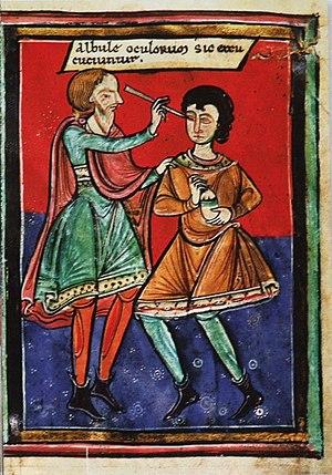 Mittelalterliche Augenoperation