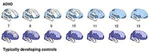 Adhd brain timelapse
