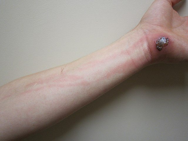 Cellulitis - not a spider bite! Image by James Heilman, MD