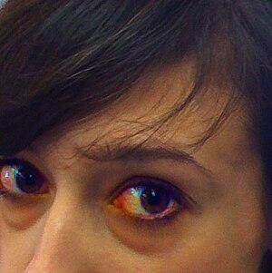 English: Example of eye puffiness and irritati...