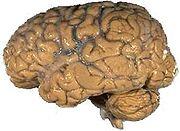 Cerebro humano.