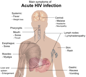 English: Main symptoms of acute HIV infection....