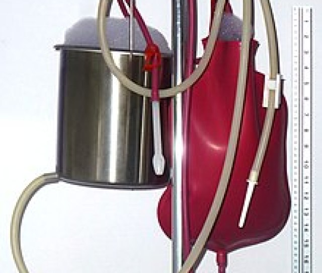 Soapsuds Enemas In A Can With A Nozzle Typical For A Cleansing Enema And In A Contrast Enema Bag With A Barium Nozzle