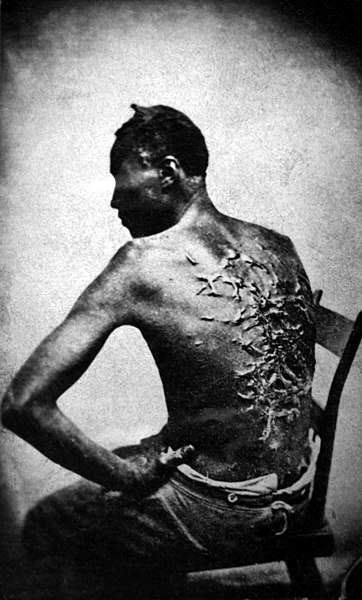 File:Cicatrices de flagellation sur un esclave.jpg