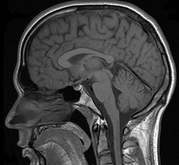 MRT scan of human head