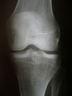 Medical X-rays, Knee joint