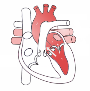 Mitral Regurgitation scheme
