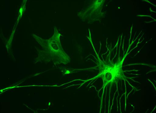 Human astrocyte