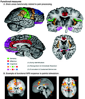 Regions of the cerebral cortex associated with...