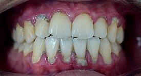 """Résultat de recherche d'images pour """"tartre dentaire"""""""