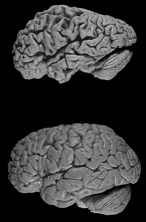 Healthy brain (bottom) versus brain of a donor...