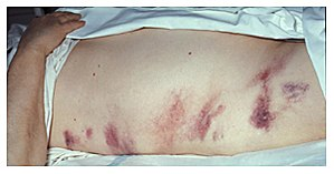 Hemorrhagic pancreatitis - This 40-year-old wo...