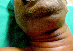 Swelling in the submandibular area in a patien...