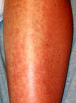 Image Result For Wheat Allergy Exercise Induced Anaphylaxis