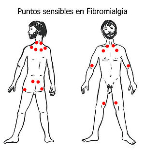 English: Tender Points in Fibromyalgia.